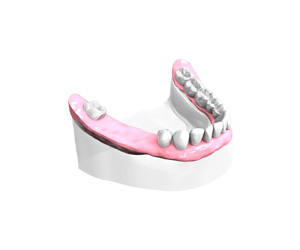 Examen-pre-implantaire-Dentiste – Dentiste Orléans