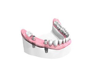 Mise-en-place-des-implants-dentaires – Dentiste Orléans