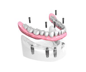 Mise en place des implants dentaires – Dentiste Orléans