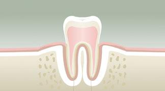 Parodontologie Stade 1 - Dentiste Orléans