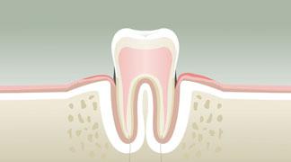 Parodontologie Stade 2 - Dentiste Orléans