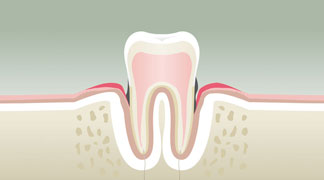 Parodontologie Stade 3 - Dentiste Orléans