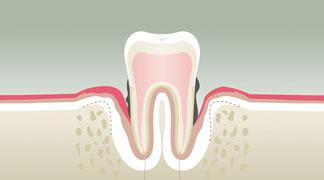 Parodontologie Stade 4 - Dentiste Orléans