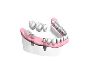 Pose d un bridge ceramique sur implants – Dentiste Orléans