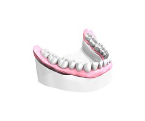Sourire retrouve – Dentiste Orléans